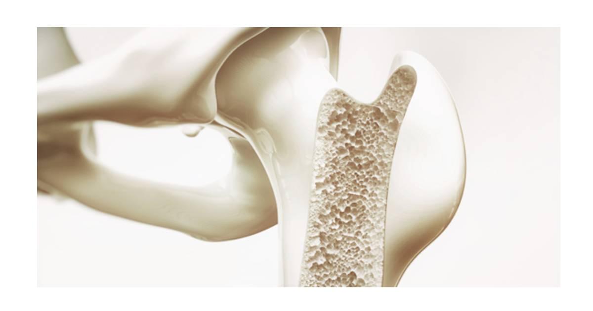 Loãng xương là gì