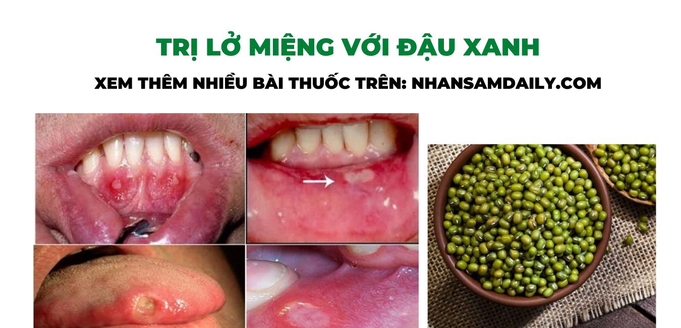 đậu xanh có công dụng trị lở miệng